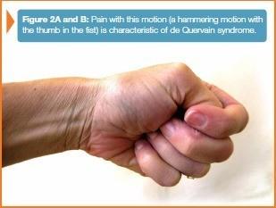 De Quervain Syndrome Manhattan , The New York Hand \u0026 Wrist