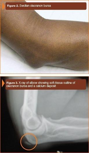 Olecranon Bursitis Treatment Brooklyn  New York