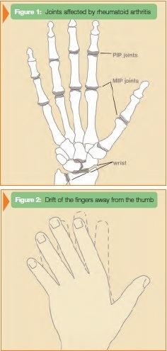 Rheumatoid Arthritis New York Osteoarthritis Manhattan Brooklyn